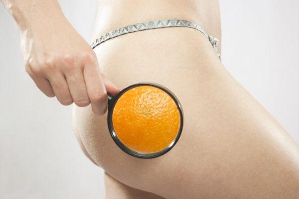 апельсиновая корочка целлюлит на ногах