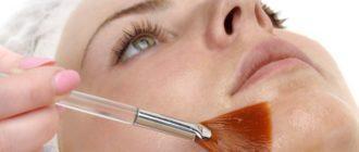 химический пилинг для проблемной кожи лица