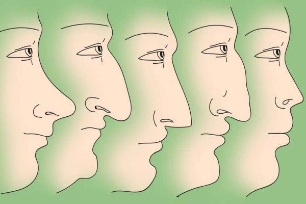 формы носа