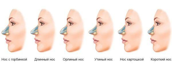 разновидности носа